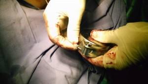 Galería de fotos de procedimientos