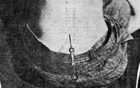 The new spinal anesthesia (1902)