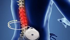 Protocolo para neuroestimulación y bombas intratecales en el tratamiento del dolor.