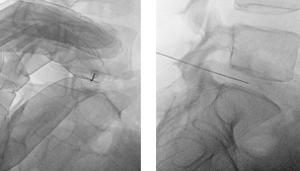 Las hernias de disco lumbar: tratamiento percutáneo con discogel