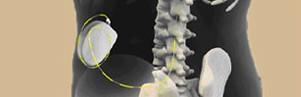 Neuroestimuladores en columna para dolores